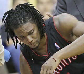 An inadvertent elbow catches Raptors center Chris Bosh, which results in a broken bone in his face.  (AP)